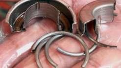 Homem fica 12 horas com partes intimas presa em um anel de aço