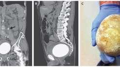 Cálculo renal de quase 1kg é encontrado na bexiga de um homem
