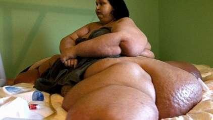 Mulher mais gorda do mundo perde 360 quilos e choca a todos