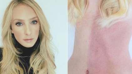 Mulher com uma marca de nascença descobre ser a própria gêmea