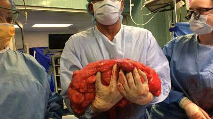 "Homem descobre que ""Barriga de chopp"" era na verdade tumor"