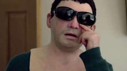 Jovem alérgico ao sol ganha máscara realista para poder sair