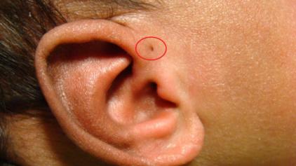 Você tem esse buraquinho na orelha? Saiba o que ele significa