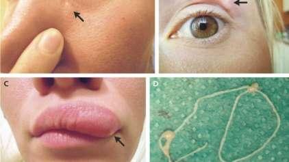 Russa tem parasita vivo dentro da pele do rosto por dias
