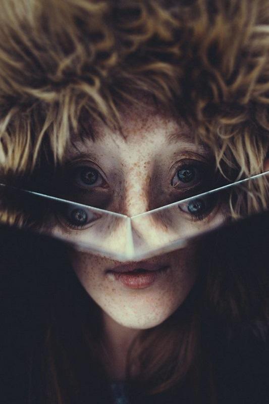 Mulher com rara deformidade está desafiando os padrões de beleza