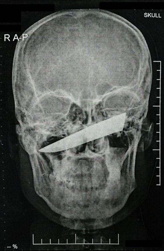 Raio X incrível mostra lamina de 10cm em rosto de paciente