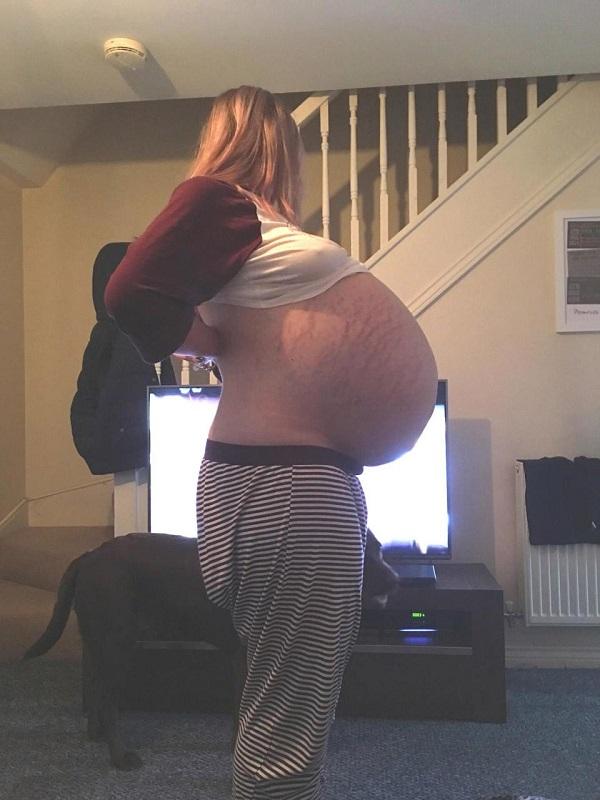 Mulher que médicos pensava estar grávida carrega cisto de 25kg