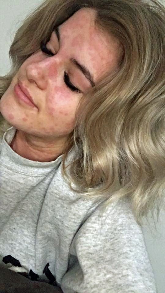 A história da mulher que é alérgica ao frio